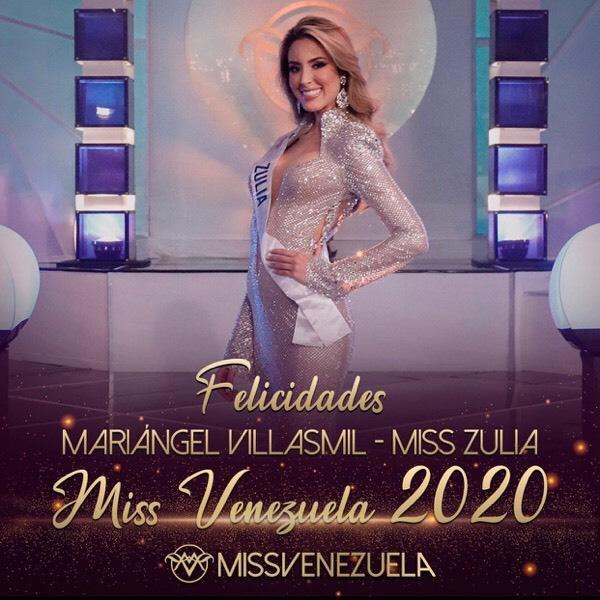 Vẻ gợi cảm của mỹ nữ 24 tuổi lên ngôi Hoa hậu Venezuela 2020 - Ảnh 1.