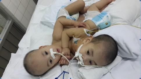 Sức khỏe hai bé được phẫu thuật tách rời đang dần ổn định 2