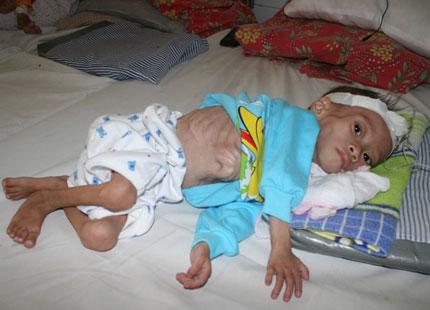 Bé 3 tuổi đói nghèo da bọc xương đã qua đời 1