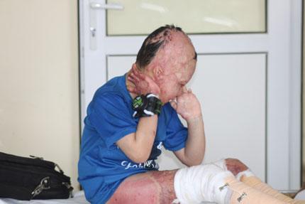 Bi kịch của đứa trẻ mồ côi bị xăng đốt cháy đen cơ thể  1