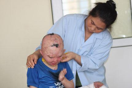 Bi kịch của đứa trẻ mồ côi bị xăng đốt cháy đen cơ thể  2