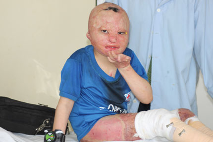 Bi kịch của đứa trẻ mồ côi bị xăng đốt cháy đen cơ thể  3