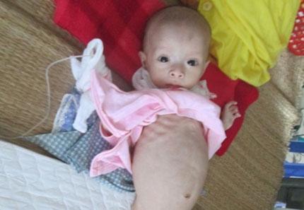 Đắng lòng bé 8 tháng suy dinh dưỡng chỉ còn da bọc xương  1