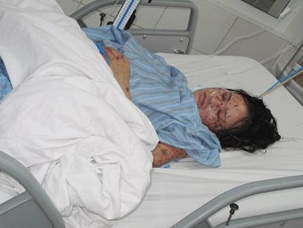 10 bệnh dịch gây tử vong nhiều nhất tại Việt Nam  1