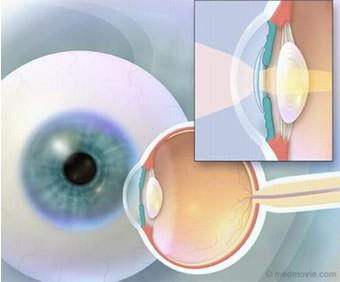 Phát hiện, phòng ngừa và điều trị một số bệnh lý về mắt do lão hóa  1