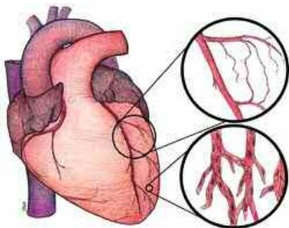 Bệnh viện Đa khoa tỉnh Thanh Hóa thực hiện thành công can thiệp tim mạch 1