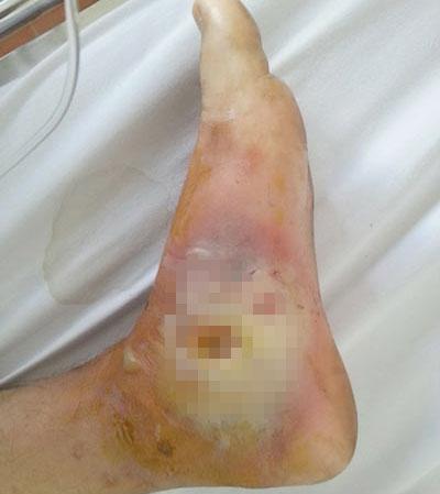 """Hoại tử chân vì """"chữa mẹo"""" vết phỏng pô xe 1"""