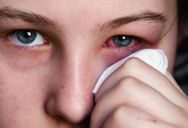 Cách xử lý khi bị đau mắt đỏ 1