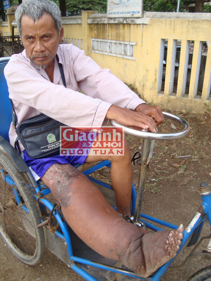 Đời cơ cực của người đàn ông hơn 20 năm góp tiền nhờ bác sỹ… cắt chân mình 2