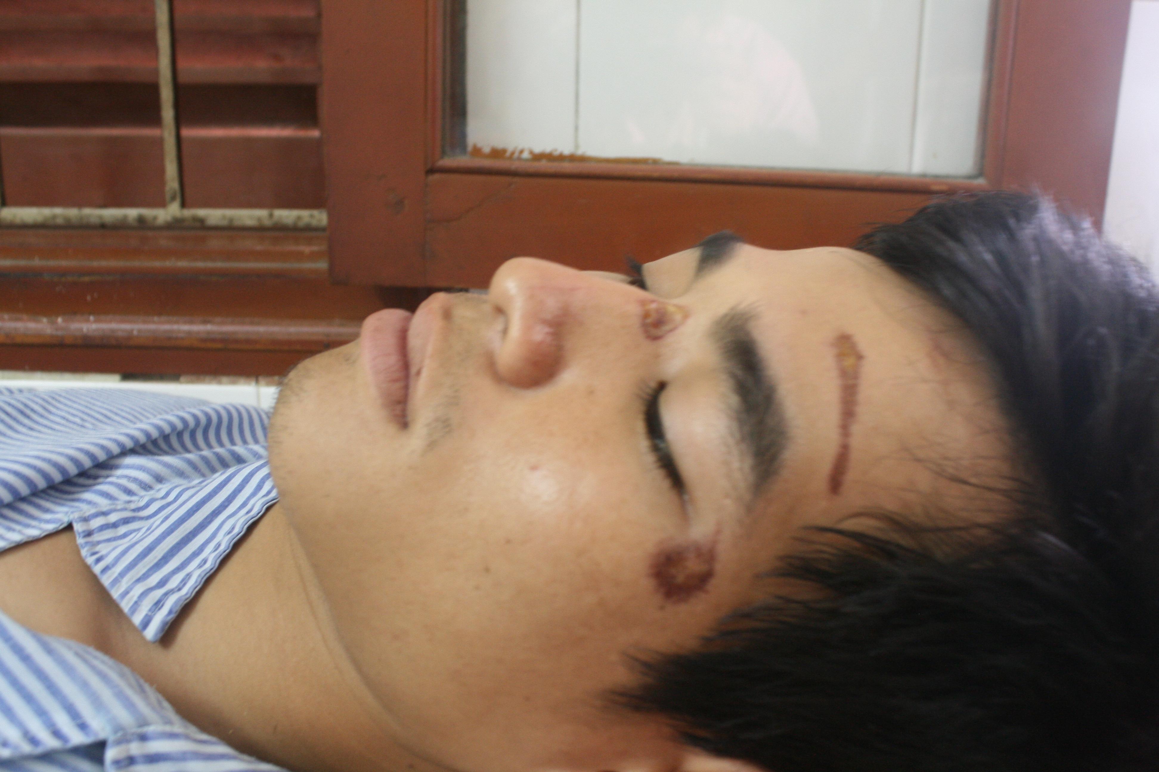 Phóng viên bị cấm tác nghiệp trong vụ Công an xã Liêm Am (Vĩnh Bảo) đánh người 2