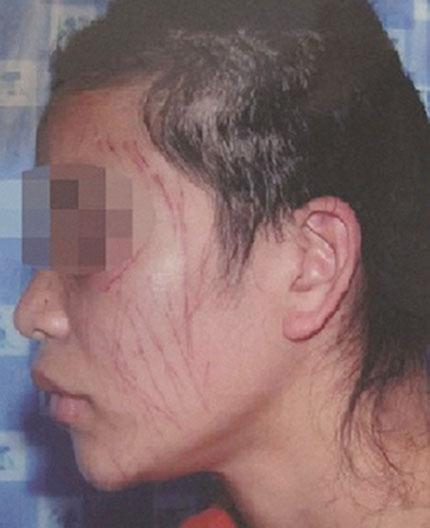 Ép vợ tự rạch mặt vì cú điện thoại lạ 1