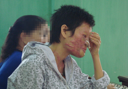 Cuộc đời khốn cùng của người đàn bà bị chồng tạt axít mù mắt 1