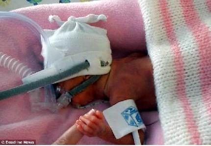 Sức sống kì diệu của bé gái nhỏ bằng một bàn tay người lớn 1