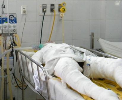 Thiếu nữ bị thiêu trước cổng phòng trà đã tử vong 1