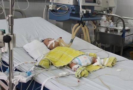 Cứu sống bé gần 3 tháng tuổi bị bệnh tim hiếm gặp 1