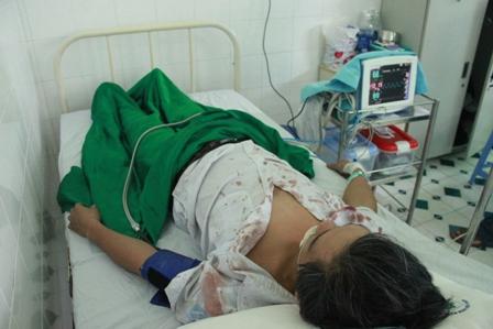 Phụ xe nghi bị bảo vệ bến xe đánh phải nhập viện 1