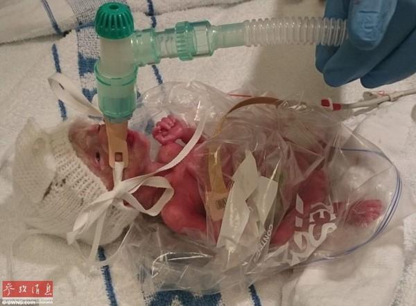 Các bác sĩ đã dùng túi đựng bánh mì để ủ ấm cho cô bé hạt tiêu Pixie.