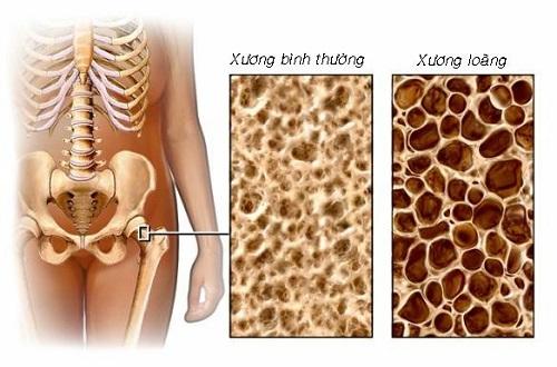 loang-xuong-7625-1442380708.jpg