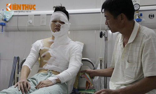 Mot sinh vien Ha Noi bị tạt axit lúc nủa dem