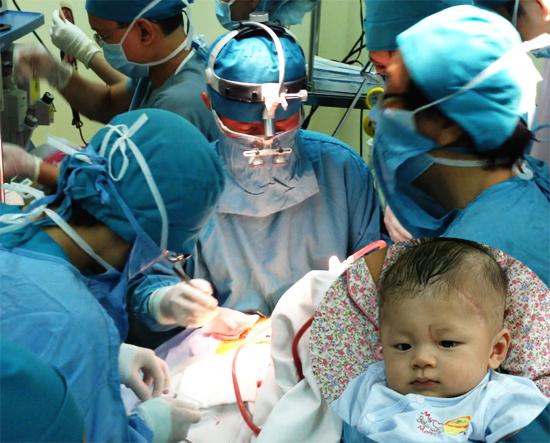 Con dao bẩn là nguyên nhân khiến bé Phát đối diện vớibiến chứng áp xe não. Ảnh:Thiên Chương