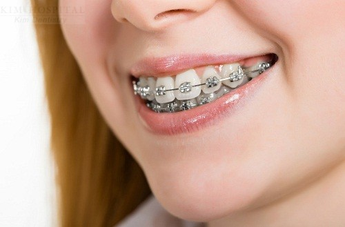 Niềng răng mắc cài kim loại có thật sự nguy hiểm không?