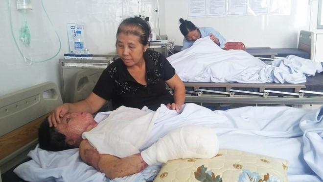Chị Dung và mẹ trong phòng hậu phẫu tại Viện Bỏng Quốc gia. Ảnh: NVCC.
