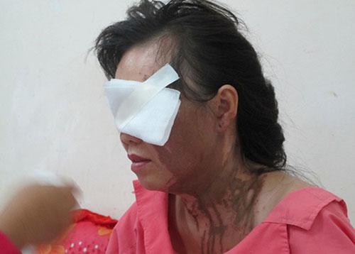Bà Hà sau khi bị tạt axit.