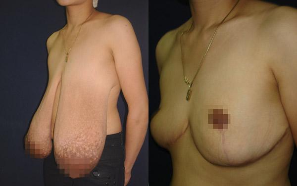 Hình ảnh trước và sau khi phẫu thuật thu gọn vú của bệnh nhân Đặng Ngọc Dương