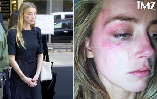 Amber Heard xuất hiện tại tòa chiều ngày 27/5 với gương mặt bầm tím.