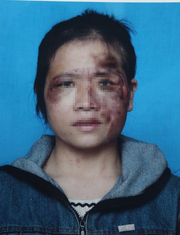 Khuôn mặt chị H. sau khi bị chồng dùng bắt sắt nung đỏ áp vào mặt bị biến dạng.