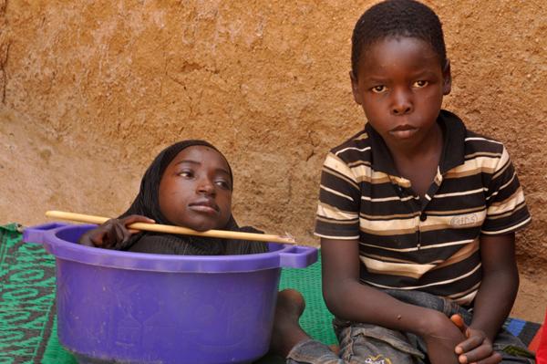 Fahad, cậu em trai 10 tuổi của Rahma, là người chăm sóc chính cho chị. Ảnh: Barcroft Media