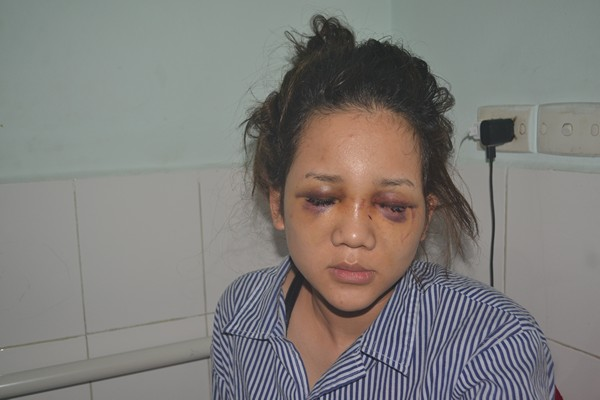 Nạn nhân Nguyễn Phương Thảo đang được điều trị tại bệnh viện. Ảnh: Đức Tùy