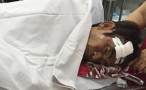 Ông Huỳnh Văn Nén hiện đang được cấp cứu tại Bệnh viện Chợ Rẫy, TP Hồ Chí Minh. Ảnh VNExpress.net