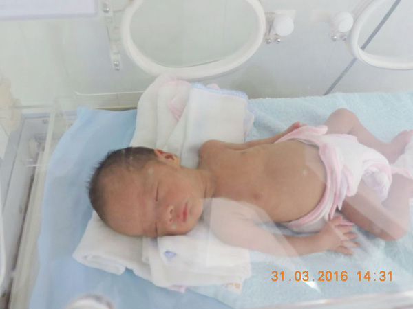 Sinh non nên em chỉ nặng hơn 1kg, còn bị suy hô hấp, phải chăm sóc đặc biệt trong lồng kính