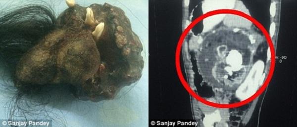 Bác sĩ cho biết,cho đến lúc được lấy ra, bào thai vẫn sống và phát triển nhờ có các hoạt động trao đổi chất bên trong cơ thể bệnh nhân.