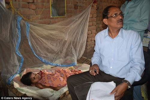 Bác sĩ đang chăm sóc Kunti, một bệnh nhân hiếm gặp với chứng bệnh xương giòn.