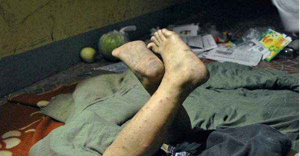 Bàn chân đầy nốt muỗi đốt của cô bé.