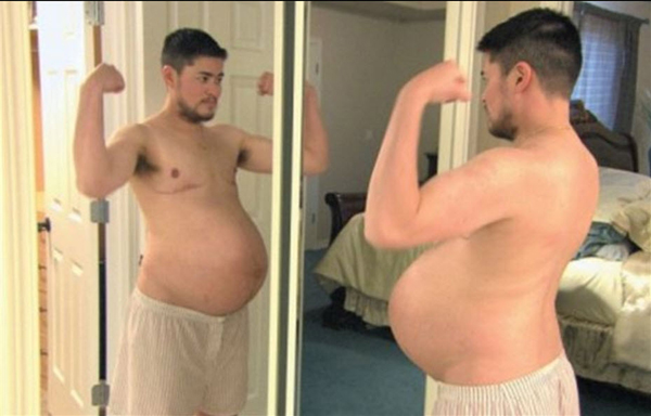 Thomas Trace trở nên nổi tiếng khắp thế giới khi anh mang thai