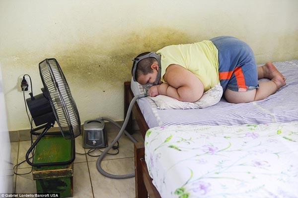 Cậu bé 5 tuổi thường xuyên phải dùng thiết bị hỗ trợ thở vì sợ sẽ bị ngưng thở trong khi ngủ.