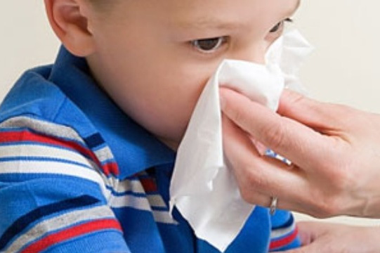 Các chuyên gia khuyến cáo, khi trẻ bị chảy máu cam, không được cho trẻ ngửa cổ lên hoặc cúi đầu quá thấp vì sẽ gây hại cho trẻ. Ảnh minh họa