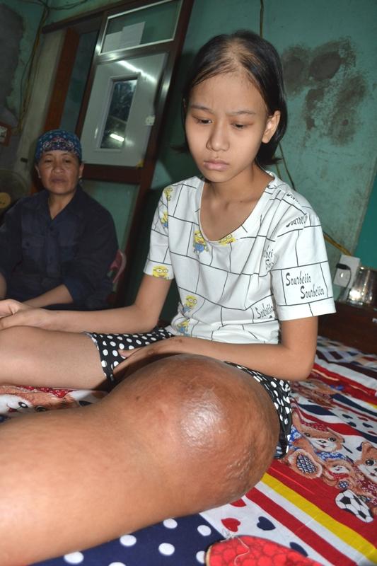 Em Nguyễn Thị Hằng ước mơ được cắp sách tới trường. Ảnh: Đức Tùy