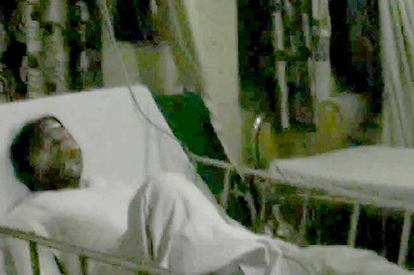 Cô gái đang nằm điều trị trong bệnh viện do bị bỏng nặng. Ảnh: CEN
