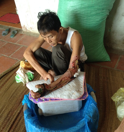 Ông Lương Quang Thắng, người xã Lương Sơn bị rắn hổ mang cắn vào tay đã được chữa khỏi