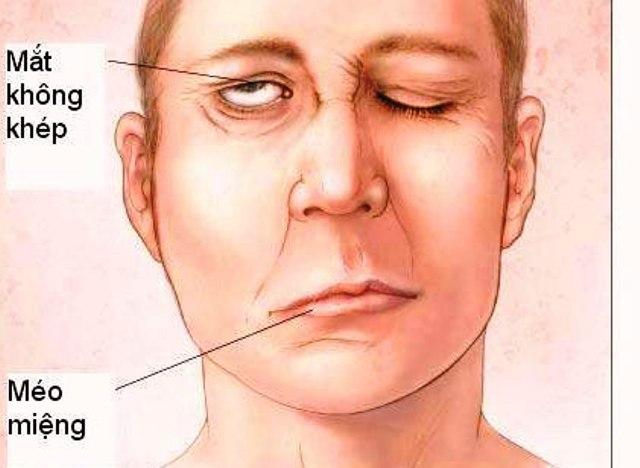 Nếu một bên mặt bỗng hơi cứng khác thường, miệng méo một bên, mắt một bên không thể nhắm kín, nước mắt chảy ra... thì cần nghĩ tới chứng liệt mặt, méo miệng. Ảnh minh họa.