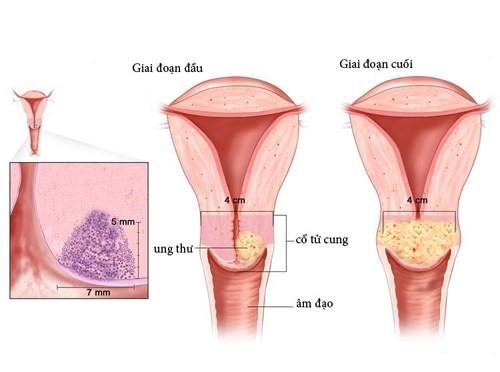 Ung thư cổ tử cung đứng thứ 3 sau các bệnh ung thư khác.