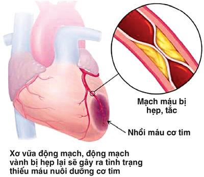 Các bệnh lý tim mạch là nguyên nhân hàng đầu gây đột qụy.