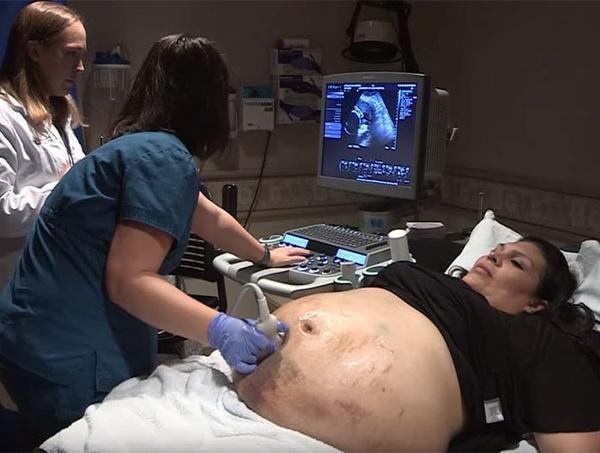Thấy bụng có nhiều dấu hiệu bất thường, Guillermina đi khám và bất ngờ với kết quả siêu âm.