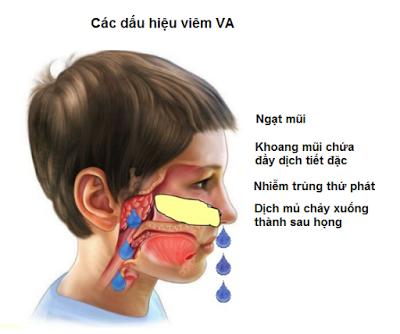 Các dấu hiệu chính khi trẻ mắc viêm VA. Ảnh: BVCC