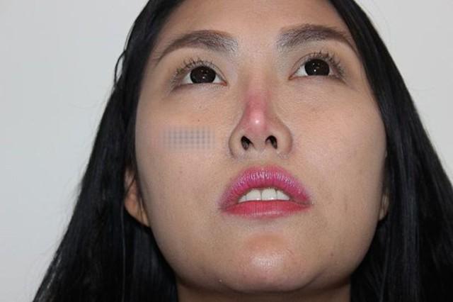 Phi Thanh Vân bị biến chứng teo, vẹo mũi sau 10 năm đặt silicon sống mũi.