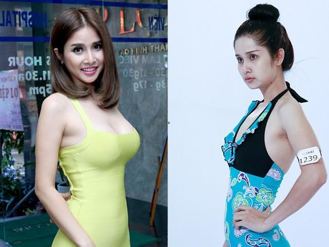 Sự thay đổi vóc dáng của nữ diễn viên Thảo Trang trước và sau phẫu thuật.